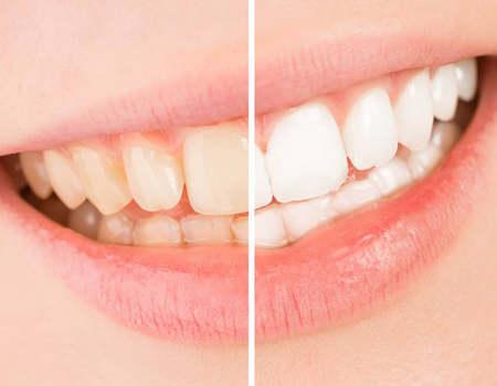 Blanqueamiento Dental c