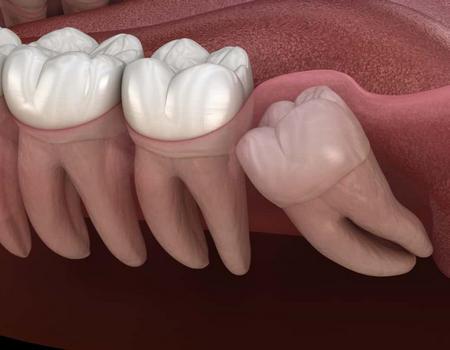 Cirugua de terceros molares